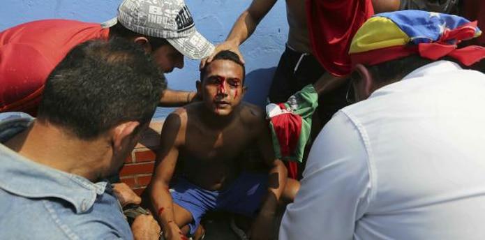 Los mayores enfrentamientos se registraron en la localidad venezolana de Ureña. (AP)