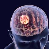 """Científicos descubren cómo algunos tumores cerebrales """"esquivan"""" la quimioterapia"""