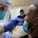 Salud reporta 86 hospitalizados por COVID-19 y 132 casos confirmados