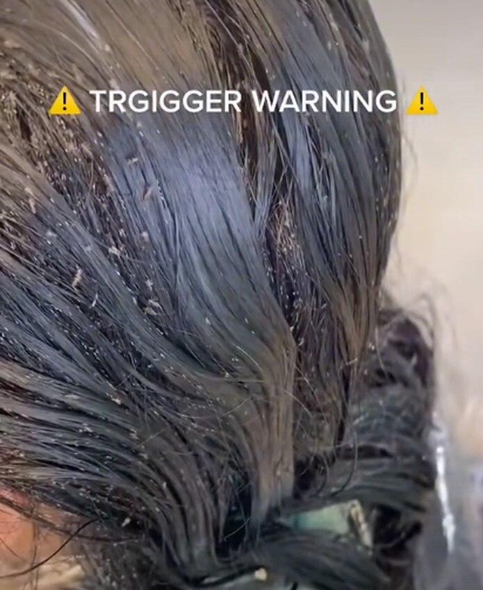 """la clínica """"The Lice Angels"""" llevó a cabo el tratamiento respectivo y, además, publicó un video para dar a conocer lo grave del caso."""
