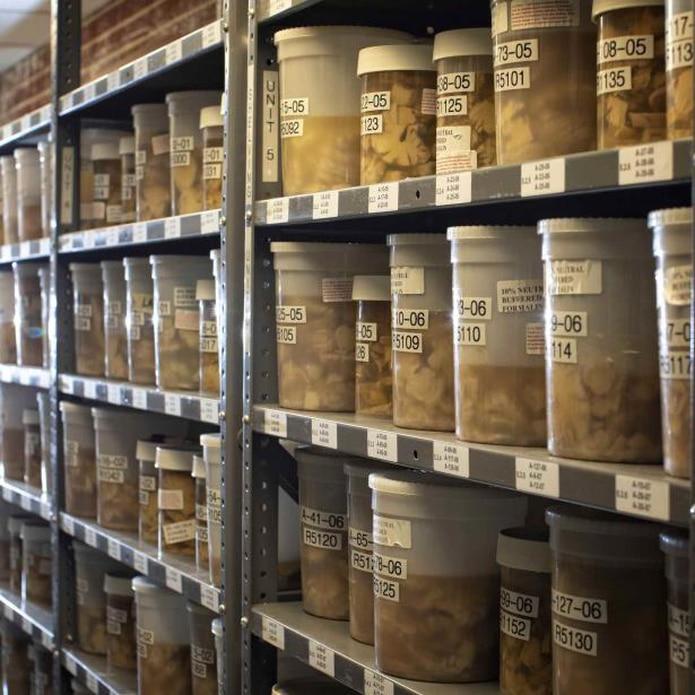 En esta foto de agosto, de la Universidad de Kentucky, exhibe muestras cerebrales guardadas en el Sanders-Brown Center on Aging en Lexington, Kentucky. (Mark Cornelison/Universidad Kentucky vía AP)