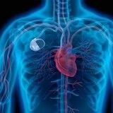 Si tienes fallo cardíaco, el desfibrilador implantable puede salvar tu vida