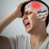 Coronavirus complica los derrames cerebrales