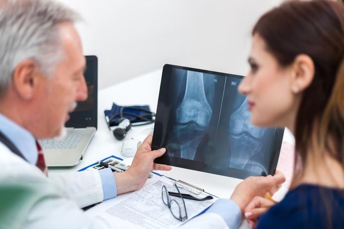 Las radiografías simples de los huesos afectados muestran osteoporosis cuando ésta ya está bastante avanzada, por ello la importancia de realizarse un examen de densidad ósea.