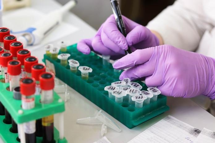 Los científicos analizaron el plasma sanguíneo de varios pacientes. (Pixabay)
