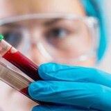 Una gota de sangre detectaría hasta 13 tipos de cáncer