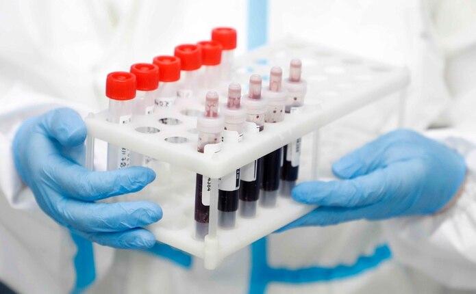 Muestras de sangre para analizar en un laboratorio en Moscú donde se realizan pruebas de COVID-19. (EFE)