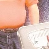 La obesidad cuesta y mata