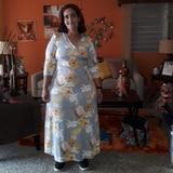 Beatriz Colón no está obesa: es lipedema y necesita de tu ayuda