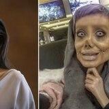 Joven se habría hecho más de 50 cirugías para verse como Angelina Jolie