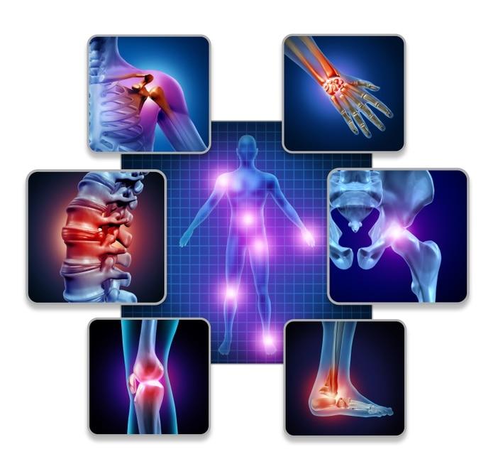 El origen de la artritis psoriásica se desconoce, pero se han identificado marcadores genéticos y una predisposición familiar, además de ser una enfermedad autoinmune.