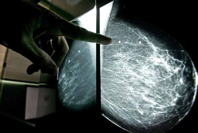 De acuerdo con las estadísticas del Registro de Cáncer de Puerto Rico, que datan del 2008, el cáncer de mama es el más común entre las mujeres. (Archivo / GFR Media)