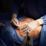 ¿A qué se exponen quienes optan por cirugías estéticas en el extranjero?