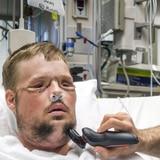 Hombre recibe nuevo rostro tras intento de suicidio